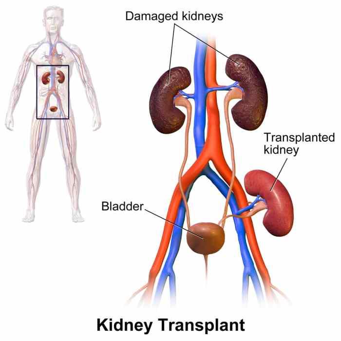 Kidney_Transplant.jpg